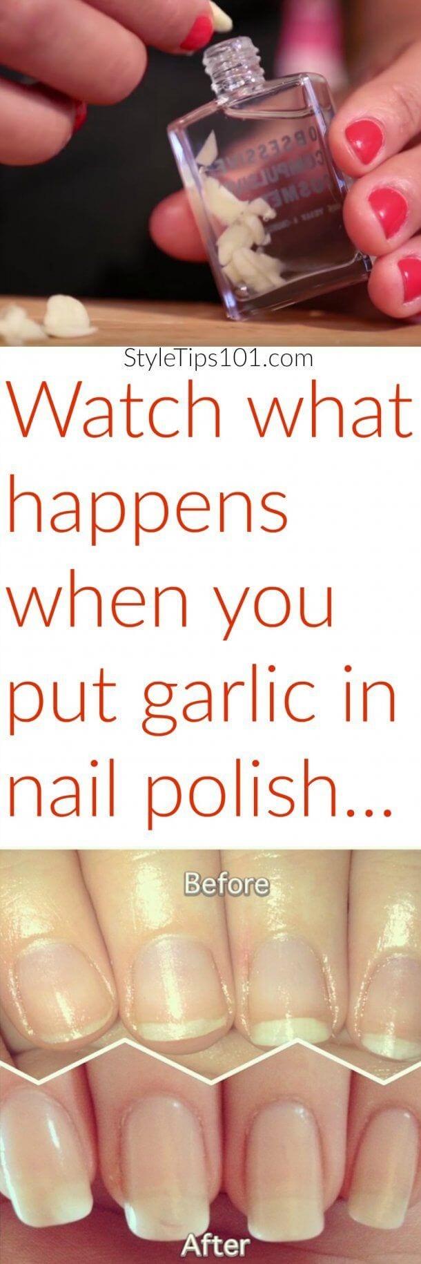 Garlic in Nail Polish Source by martajarosova78   …