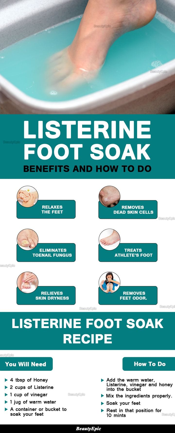 Listerine Foot Soak Benefits and How to Do Source by s9882   …
