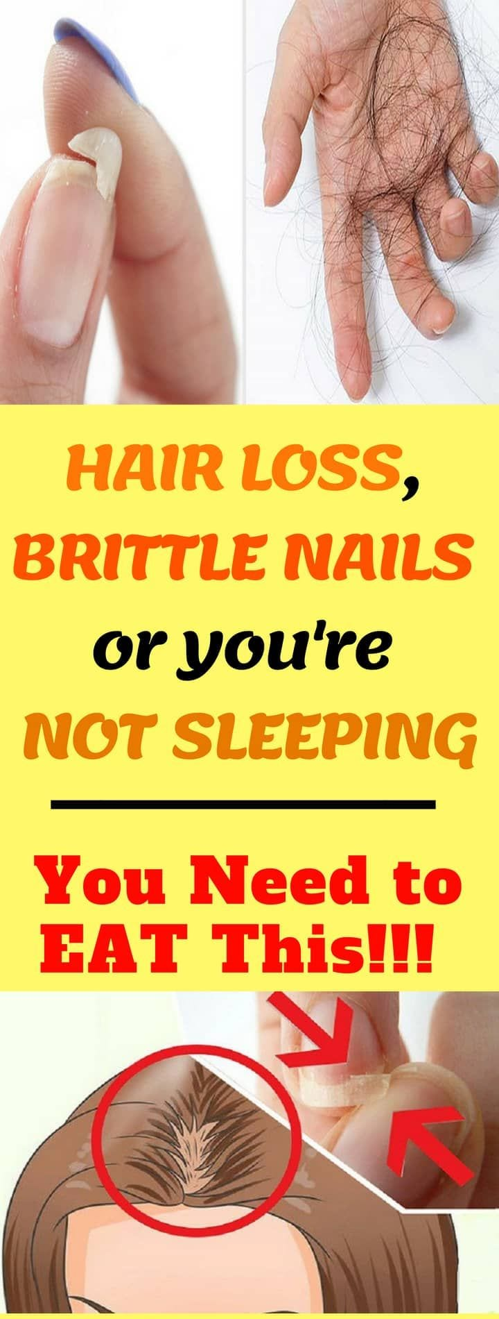 EAT THIS IF YOU HAVE HAIR LOSS, BRITTLE NAILS OR YOU'RE NOT SLEEPING!!! #hairloss #brittle #nails #eat #sleeping #health Source by mantisforce1   …