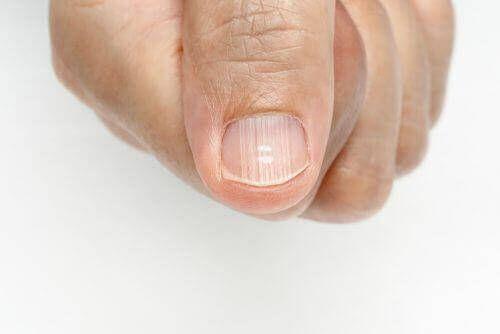Soms zie je strepen op de vingernagels verschijnen. Dit kan het gevolg zijn van verschillende oorzaken maar meestal wijst het op een onevenwicht in de lichaamsfuncties. Source by polderheks   …
